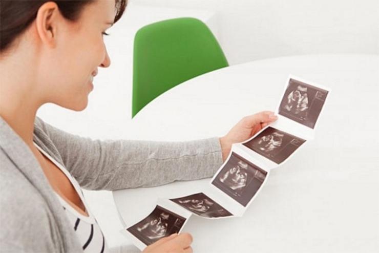 Siêu âm trong thai kỳ