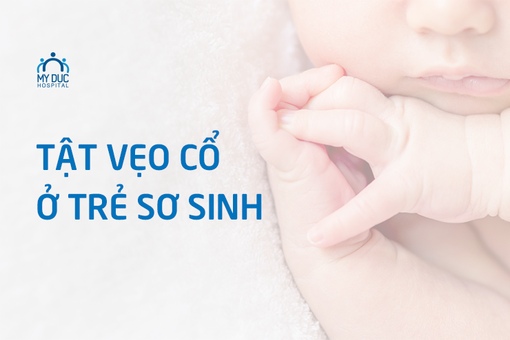 Tật vẹo cổ ở trẻ sơ sinh